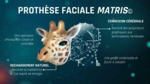 prothèse faciale matrice